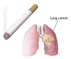 smoking-causes-lung-cancer